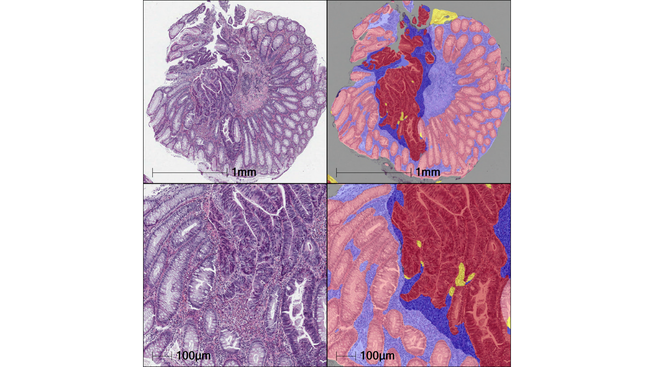 Tissue Classifier image with and without mark up. Showing the following: Pink – Benign glands, Pale blue – benign stroma, Dark red – malignant glands, Dark blue – malignant stroma